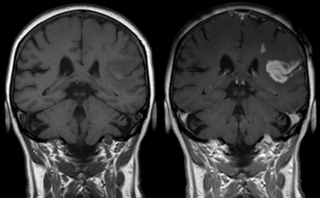 Effect of contrast agent on images: Defect of the blood–brain barrier after stroke shown in MRI